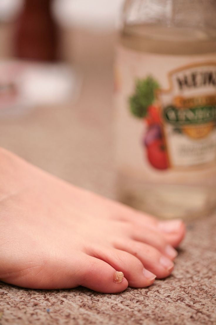 wikiHow to Cure Toenail Fungus With Vinegar via wikiHow.com ...