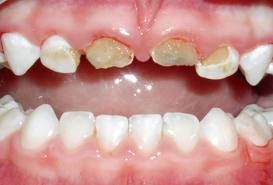 Tooth decay is the most common disease affecting children ...