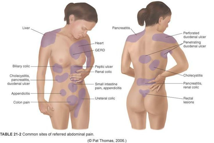 Pin on Health Gallbladder Pain Location Diagram on