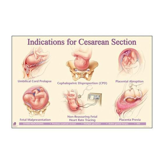 The Indication Of Cesarean Section Diagram Anatomynote