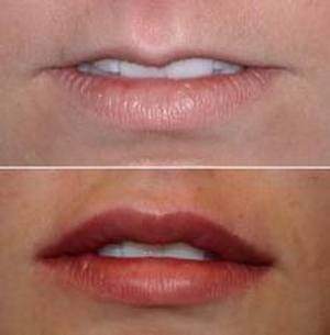 1  Lip augmentation  I have very thin lips, like the top image  To