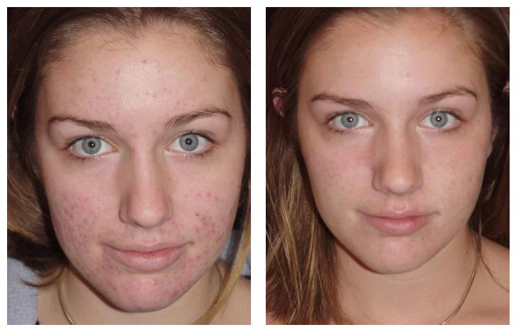 apple cider vinegar acne-scars-before-and-after | Beauty