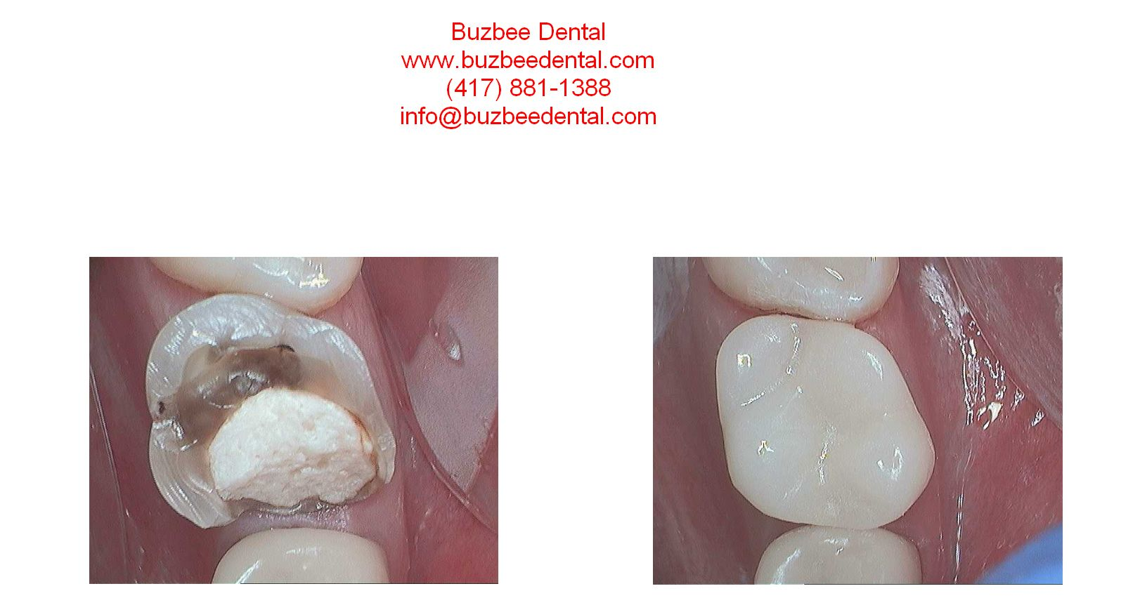 Same Day Digital Dentistry With Cerec The Patient Had A Root Canal In The Tooth And A Temporary Filling In Addition To The Tooth B Root Canal Dentistry Dental