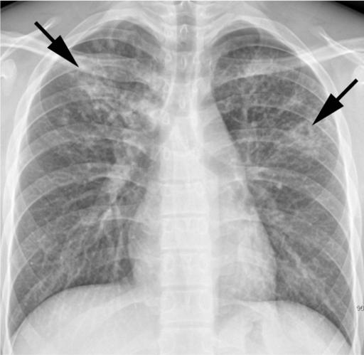 Medical Radiography, Radiology, Respiratory