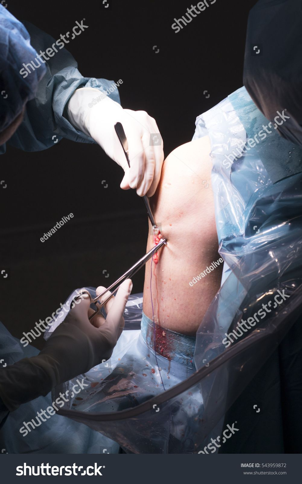 Surgical operation knee arthroscopy micro surgery in hospital operating theater … eee053fe74d509267d8960d68126a324
