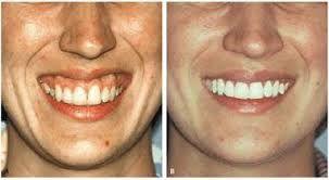 le fort osteotomy 1 - Google Search | Gummy smile correction. Teeth. Dental