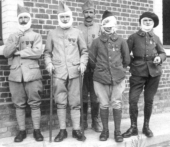 Gueules cassées, conséquences physiques de la Grande Guerre - Raconte-moi  l'Histoire | La grande guerre, Guerre, Première guerre mondiale