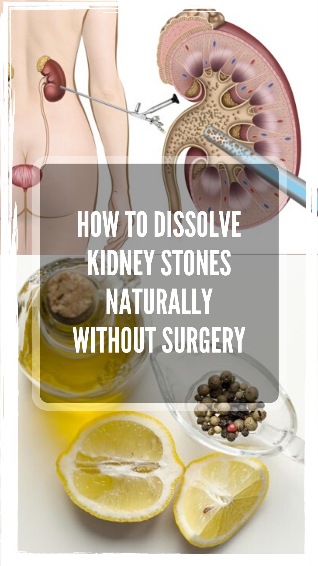 Can Green Tea Dissolve Kidney Stones