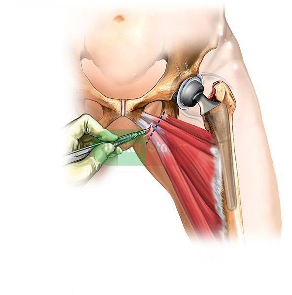 Adductor Muscles Of The Hip Of The Adductor Muscle Tendons