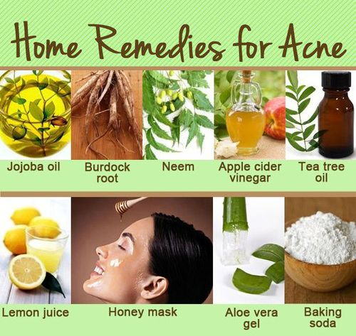How To Get Rid Of Pimples Overnight Fast Home Remedies For Acne