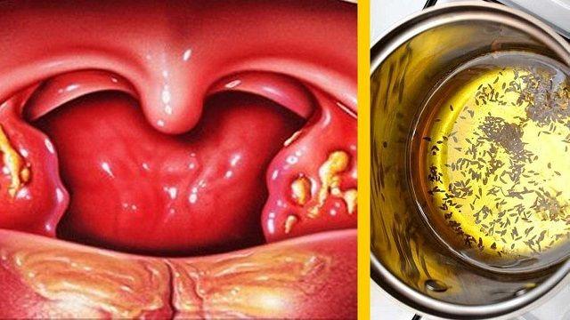 Como curar anginas inflamadas rapidamente