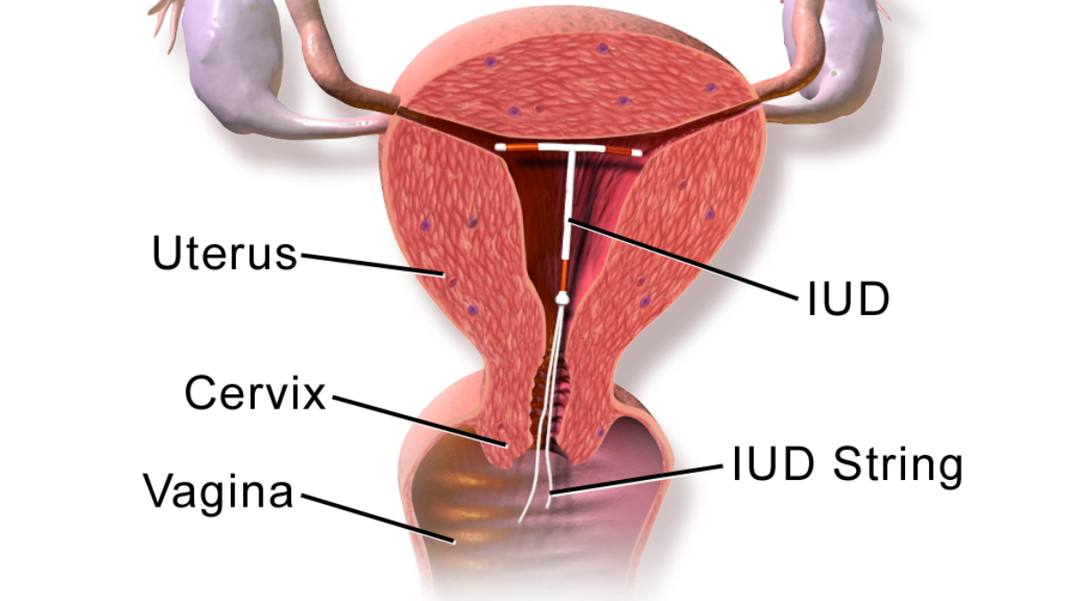 Use condom to cover cervix
