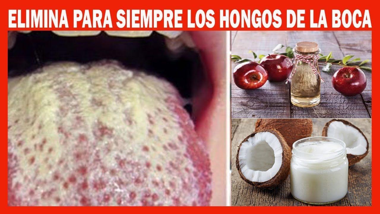 ver fotos de hongos en la boca