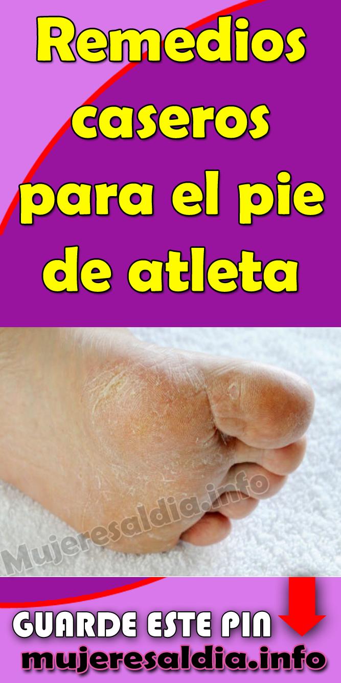 remedios caseros pie de atleta hongos