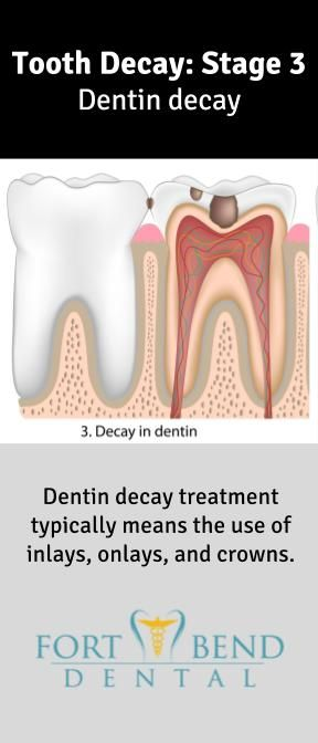 As tooth decay spread into the dentin layer, it can result