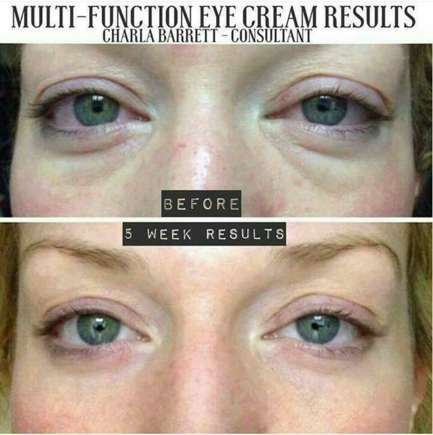 Rodan Fields R+F Multifunction eye cream before and after