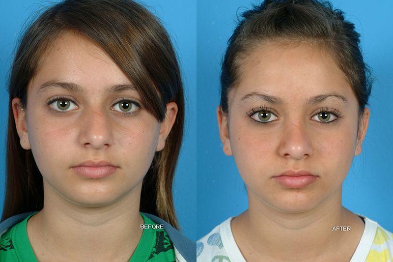 Nose Facial plastic, Nose job, Rhinoplasty