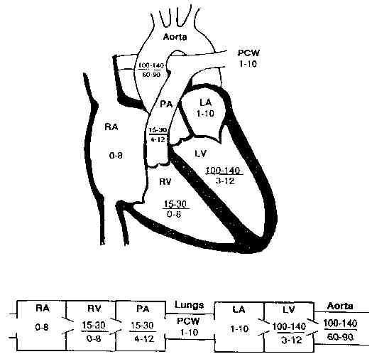 Pressures in the heart (With images)   Cath lab nursing ...