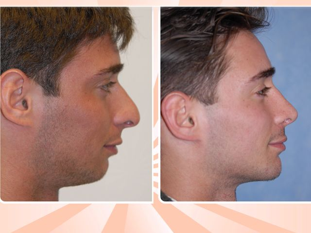 'Brotox,' 'man-ity,' and the new trend in male plastic surgery