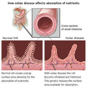 Celiac disease can develop at any age after people start ...