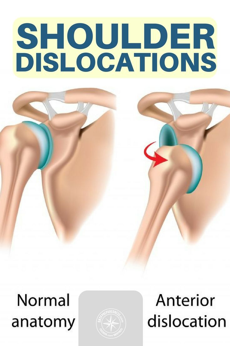 Shoulder Dislocations | survival | Pinterest | Shoulder dislocation ...