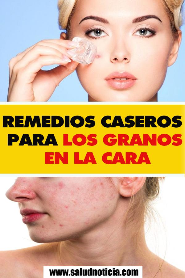 Como eliminar los granos en la cara remedios caseros