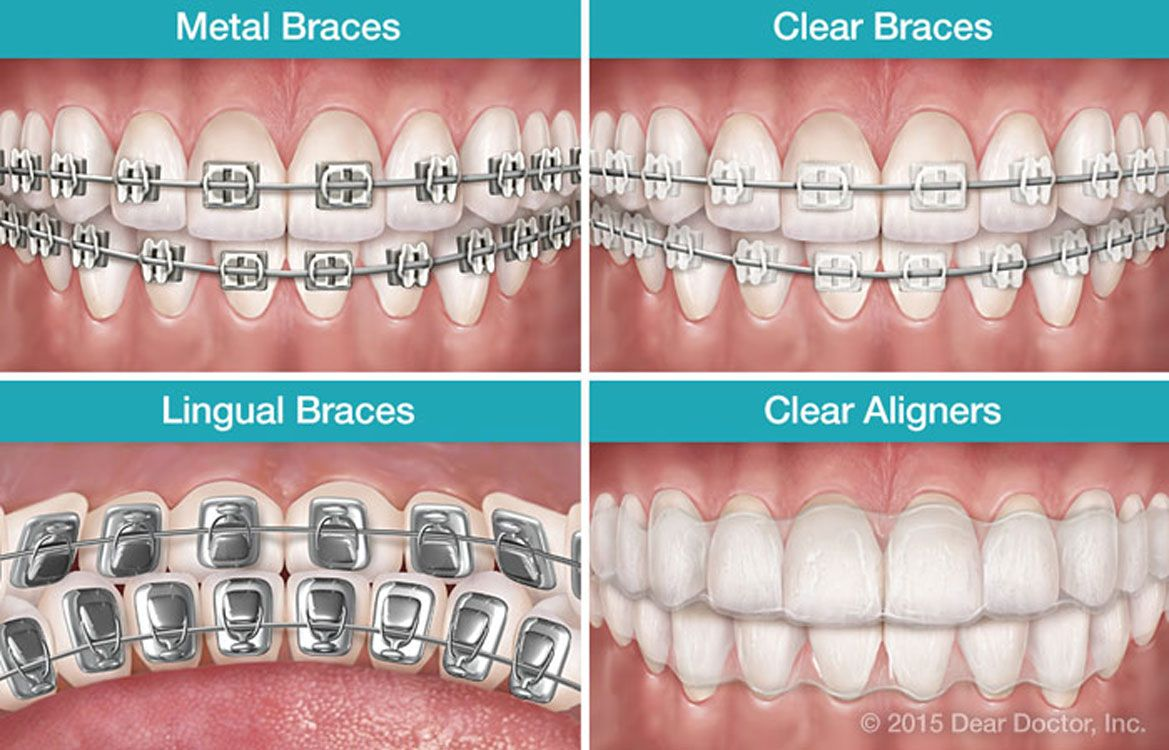 Not your parents braces orthodontic braces have been