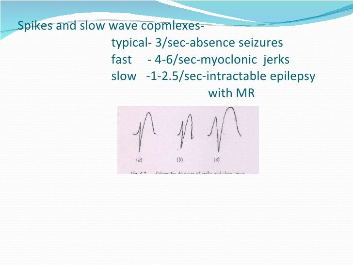 Spikes and slow wave copmlexes- typical- 3/sec-absence