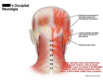 Occipital pain facial swelling