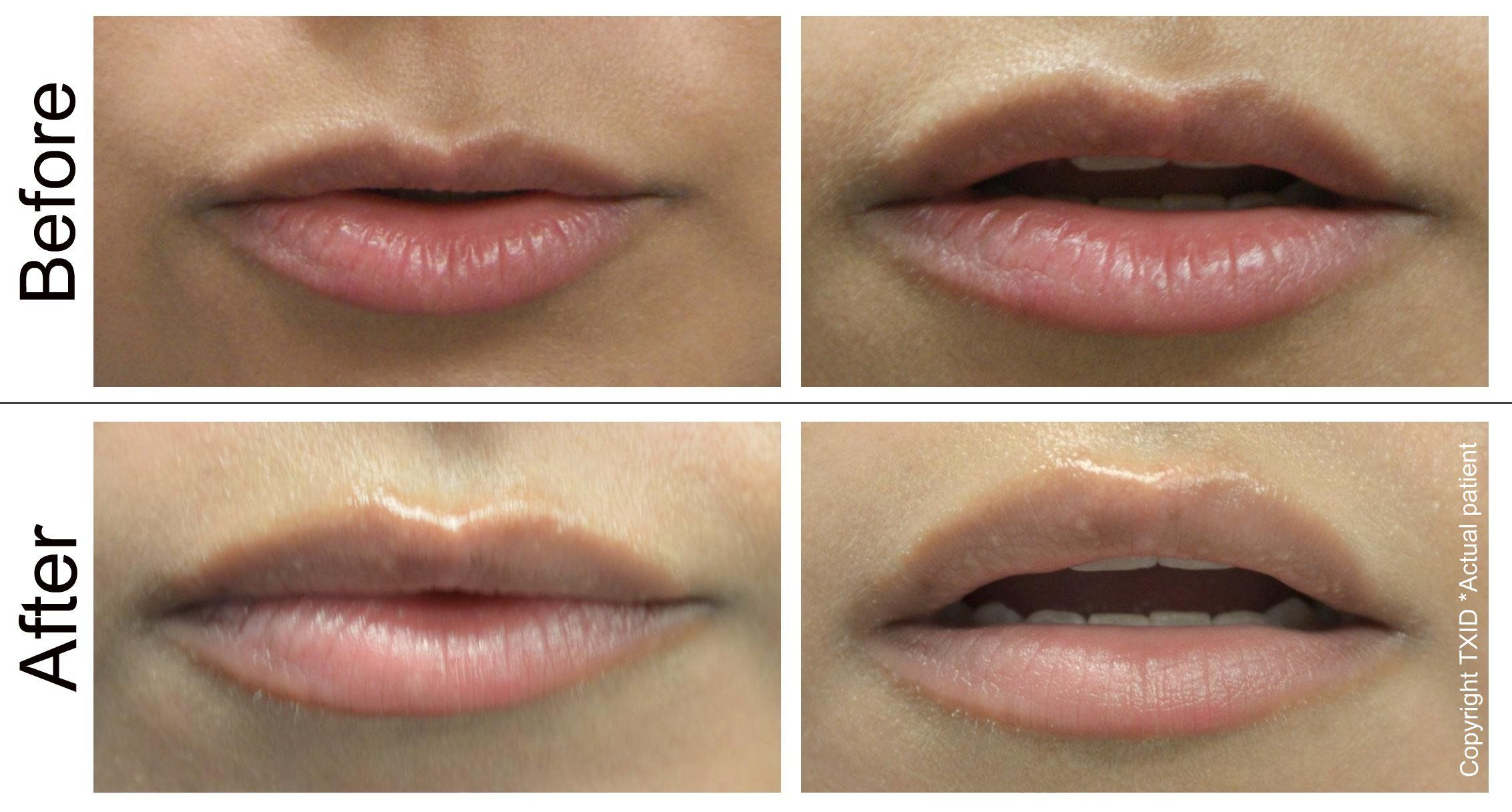 Lip Augmentation Surgery Many New And Exciting