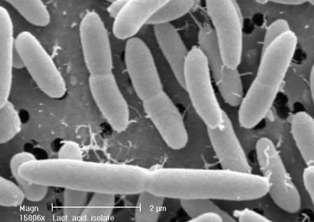 lactobacillus acidophilus (latin meaning acid-loving milk, Skeleton