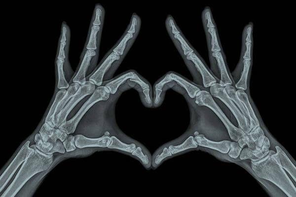 Historia De Los Rayos X Origen Inventor Y Evolucion Arte De Anatomia Arte De La Esqueletica Fotografia De Arte Oscuro