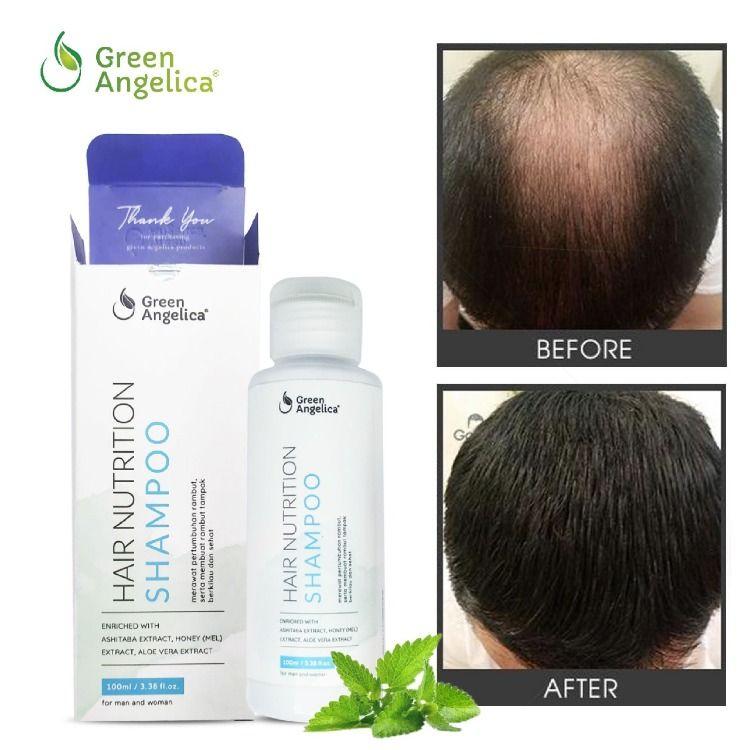 Shampo Penumbuh Rambut Alami Anti Dandruff Dan Rontok Hair Shampoo Aloe Vera Extract Hair