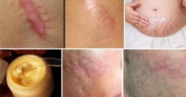 cicatrizes ocorrer devido interrup o da continuidade da pele como resultado de cirurgia. Black Bedroom Furniture Sets. Home Design Ideas