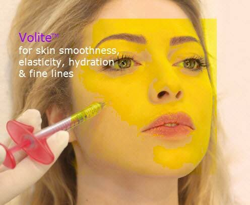 Volite by Allergan makes skin look dewy and young again