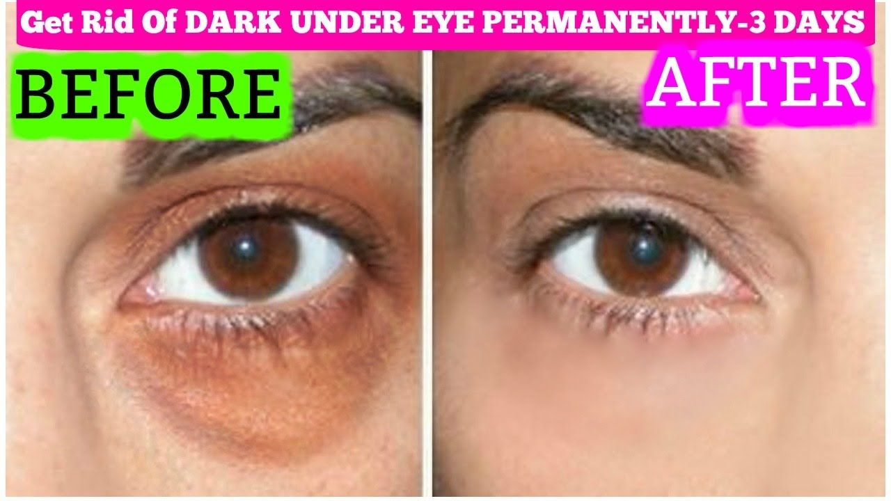 How To Get Rid Of Dark Circles In 3 Days Permanently ...