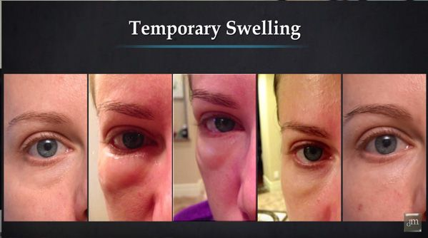 How To Reduce Swelling After Receiving Dermal Fillers