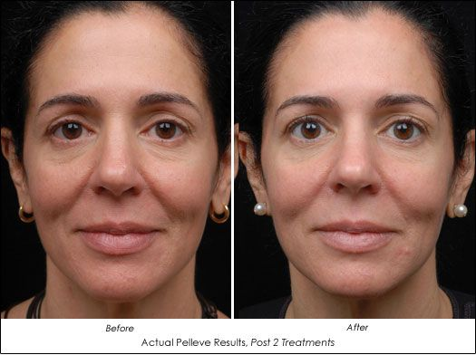 Try #Pellevé Wrinkle Reduction System to safely and effectively treats facial wrinkles with virtually no pain and no downtime. In fact, patients who have had a Pellevé treatment say it feels like a warm facial massage.
