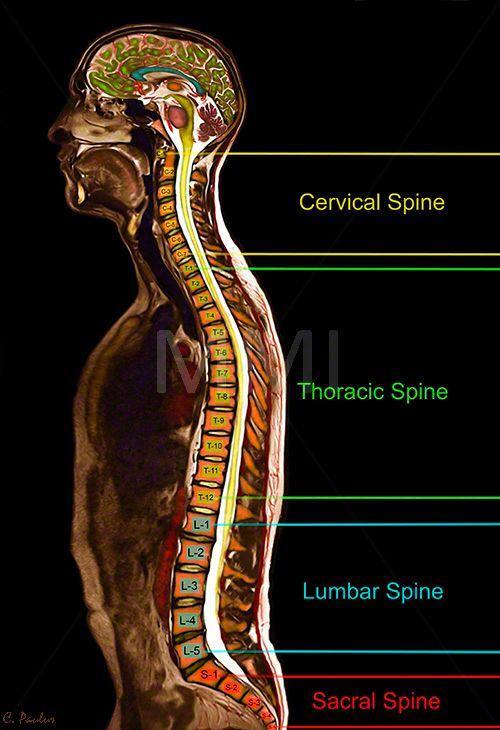 Advanced Chiropractic Image Whole Body Color Mri Spinal Segments