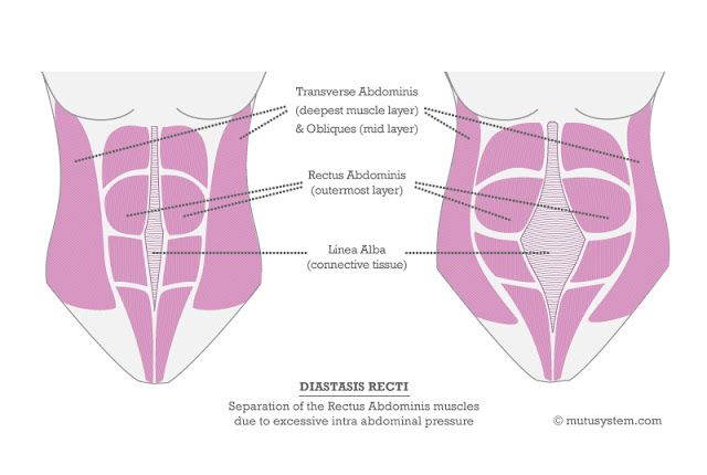 Diastasis Recti - What is it? The cause of the mummy tummy? AND how the exercises you are doing might only be making your tummy look worse! Every mom needs to read this!