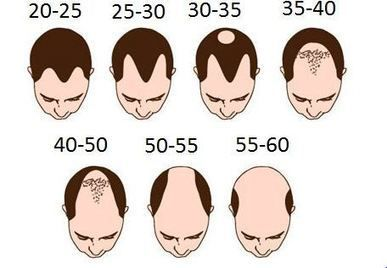 Premature Hair Loss7 Prime Reasons Behind It Hair Transplant Surgeons In Kolkata Male Pattern Baldness Treatment Hair Loss Baldness Treatment