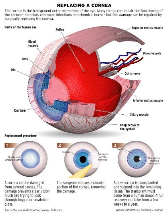 replacing a cornea 1 type explaining a kind of eye surgery 2