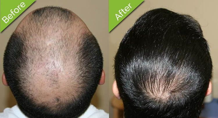 Hair transplant Best solution to baldness Natural hair