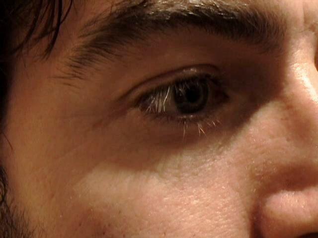 How to Get Rid of Dark Circles Under Your Eyes   Best dark ...