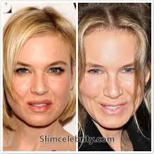 Image Result For What Is Double Eyelid Surgery Before And After Eyelid Surgery Facial Surgery Lasik Surgery