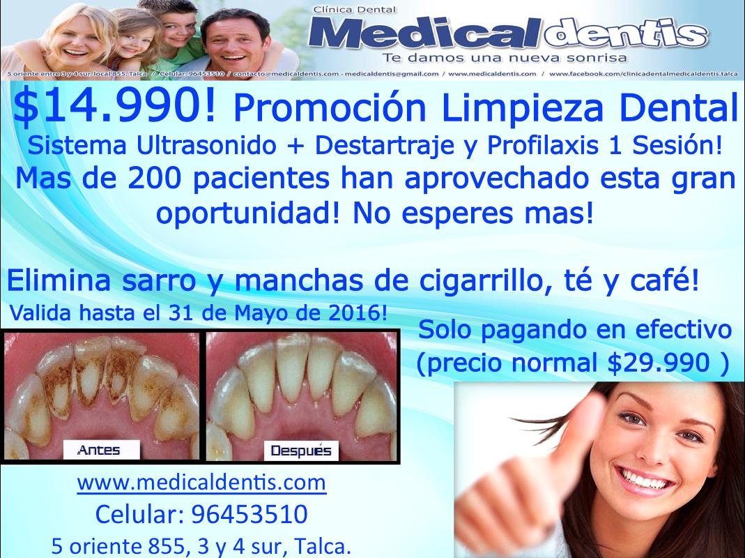 que es limpieza dental con profilaxis