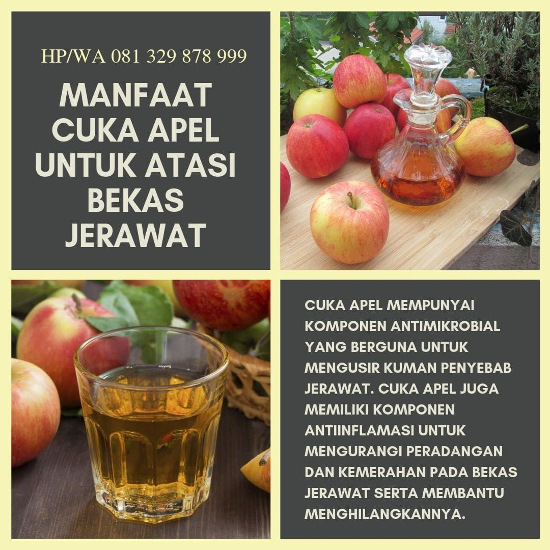 Cara Menghilangkan Jerawat Dan Bekas Jerawat Dengan Cuka Apel