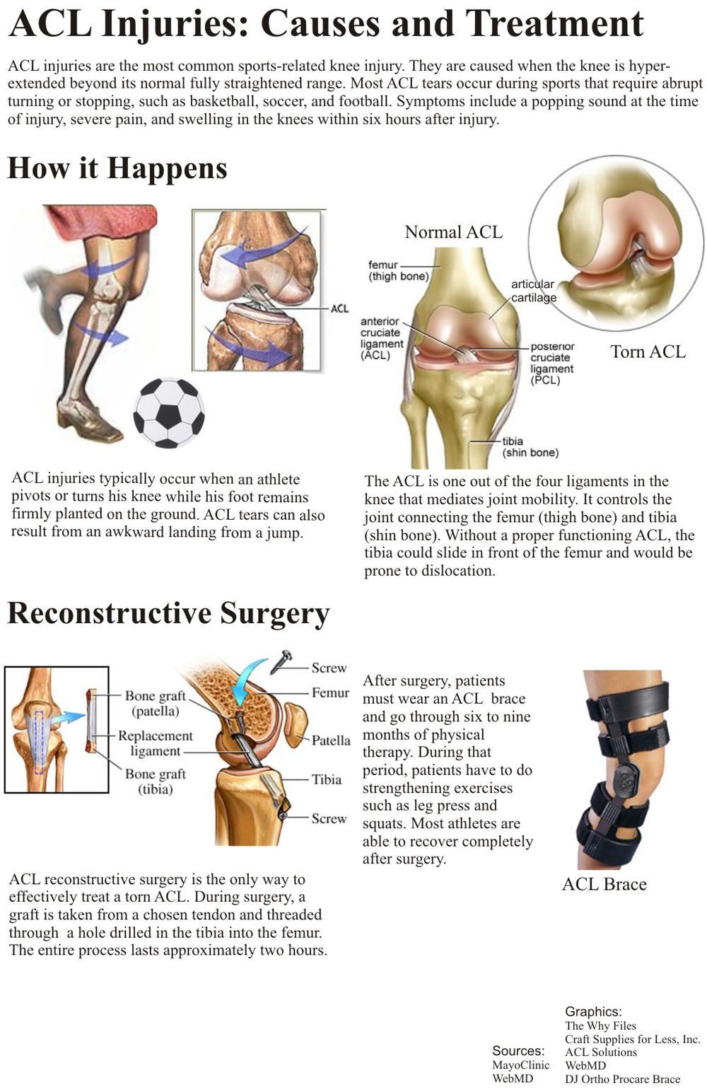 Pin by Stop Shin Splints on Sports Injuries | Pinterest | Acl, Knee ...