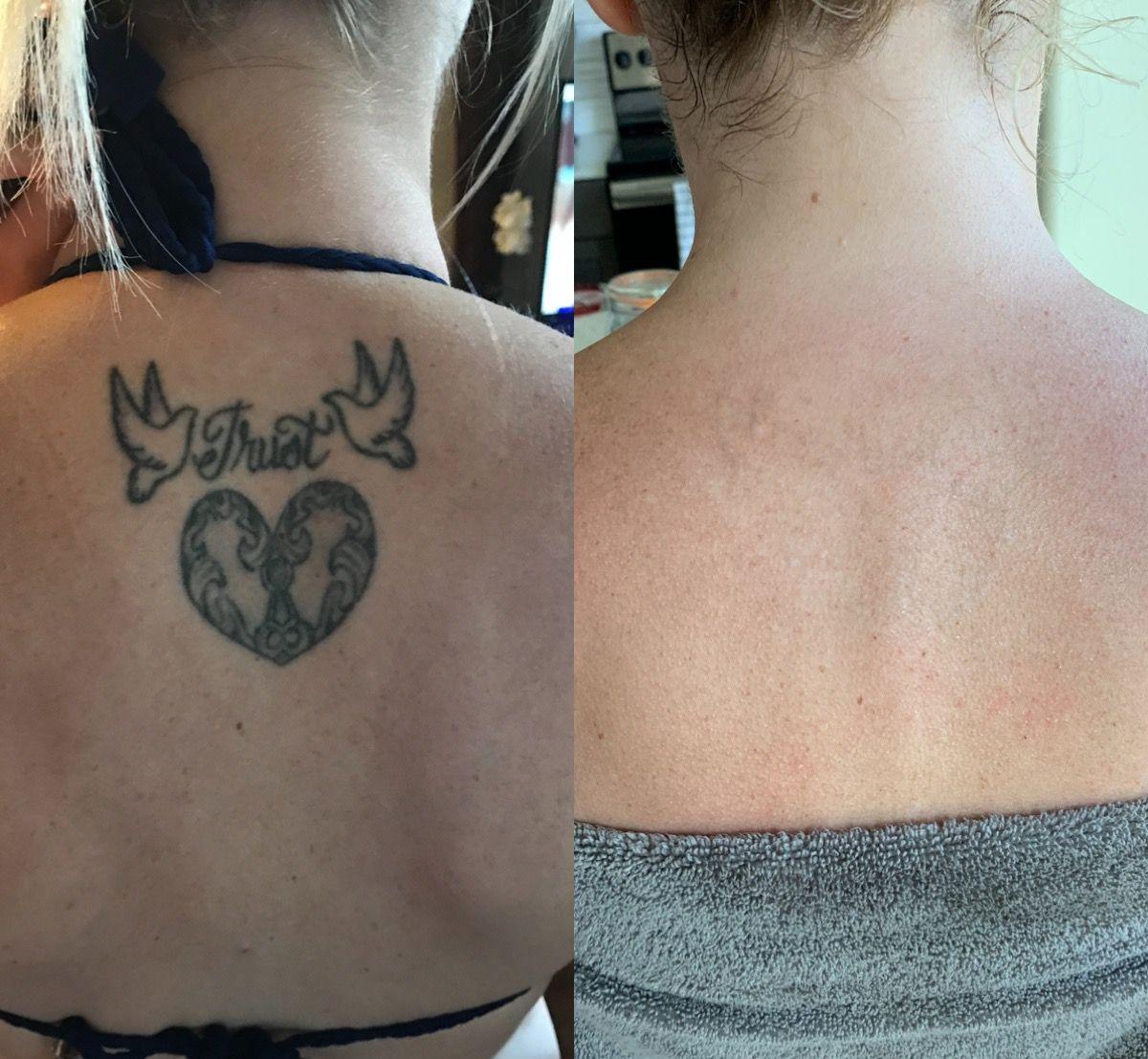 My Tattoo Removal Experience Tattoo Removal Cream Tattoo