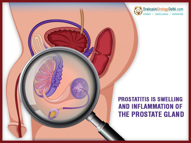 A prostatitis szivárog a vizeletben